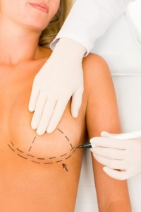 Breast-Reduction-Benefits-Both-Health-and-Appearance