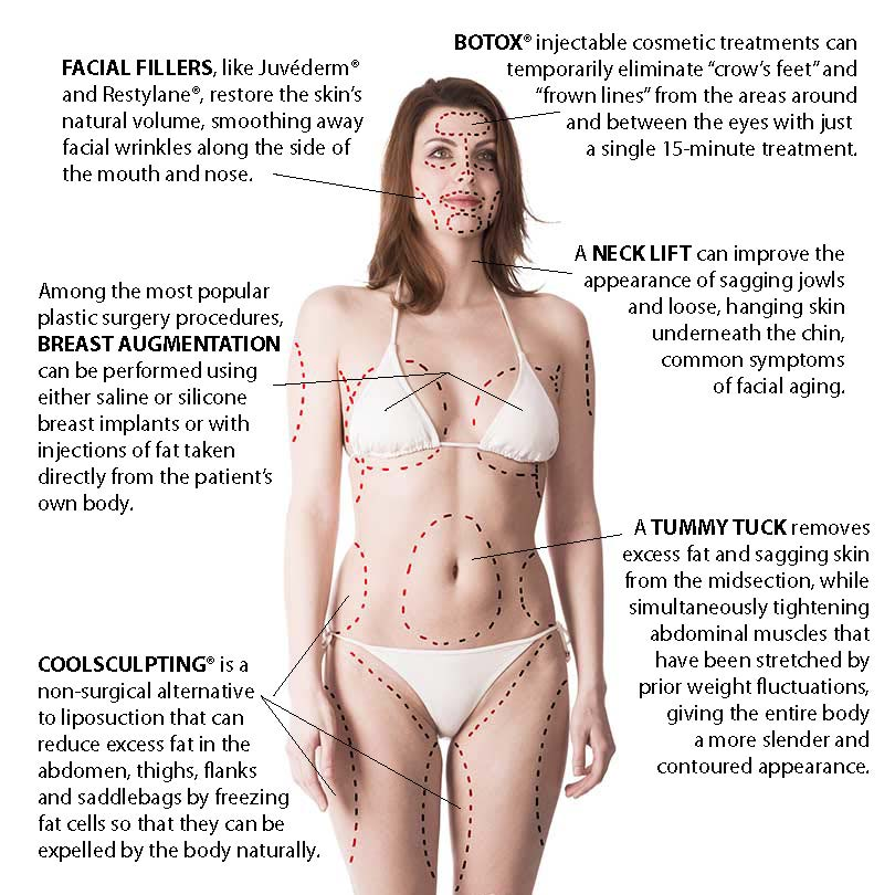 Atlanta plastic surgery Procedure Areas Infographic