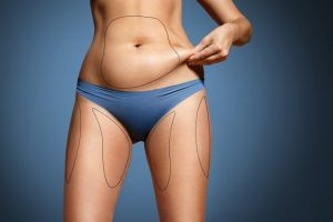 Debunking the Myths about Liposuction