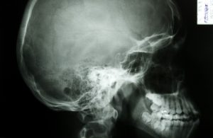 What is Maxillofacial Surgery