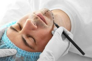 Understanding Trends and Benefits of Male Plastic Surgery