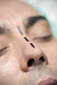 3 Reasons Why You Might Need Nose Surgery