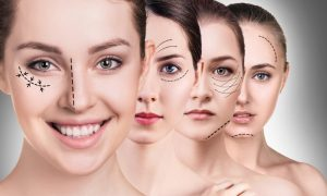 What Can Facial Plastic Surgery Do for You
