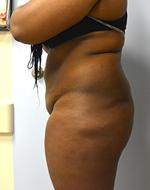 Before & After Brazilian Butt Lift Photos