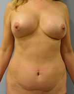 Before & After Revision Breast Implant Surgery (Cosmetic Augmentation) Results Gallery Photos