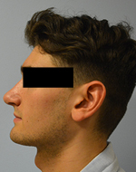 Before & After Rhinoplasty Photos