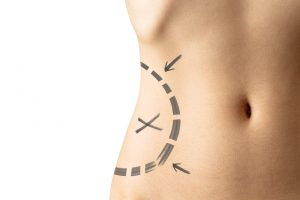 atlanta plastic surgery discusses liposuction