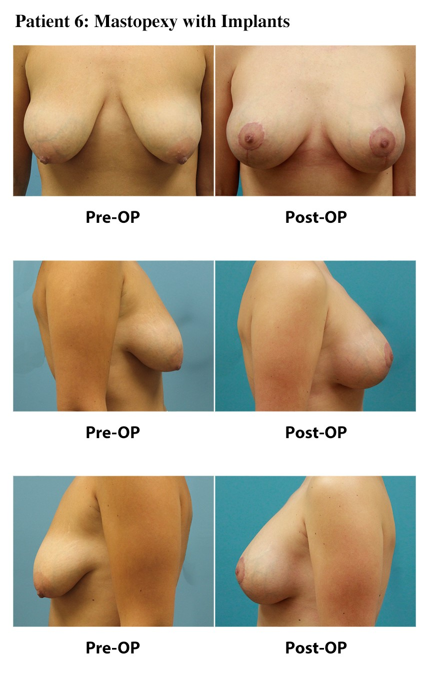 Patient 5: Mastopexy with Implants