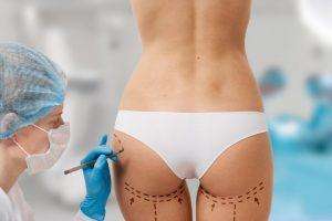 Brazilian Butt Lift at Atlanta Plastic Surgery, P.C. (Buttock Augmentation)
