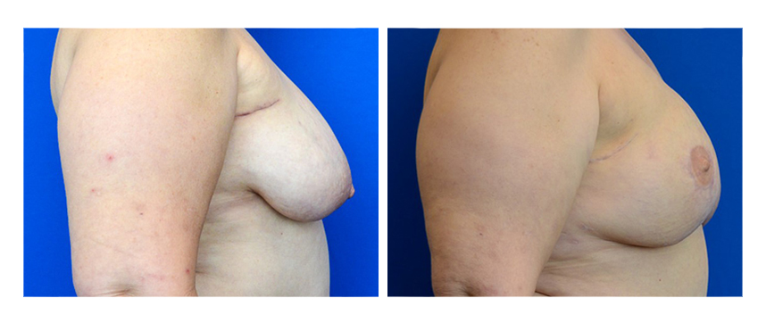 DIEP Free Flap Breast Reconstruction