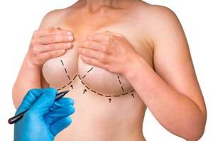 Breast-Lift-consult