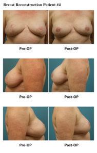 Breast Reconstruction Atlanta Plastic Surgery GA