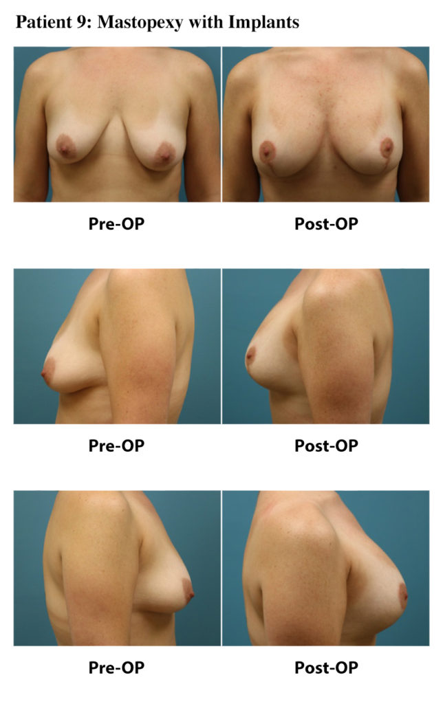 Patient 9: Mastopexy with Implants
