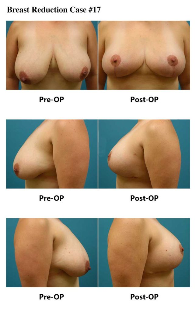 Maske-Patient-Breast-Reduction-Case-17_March-2021
