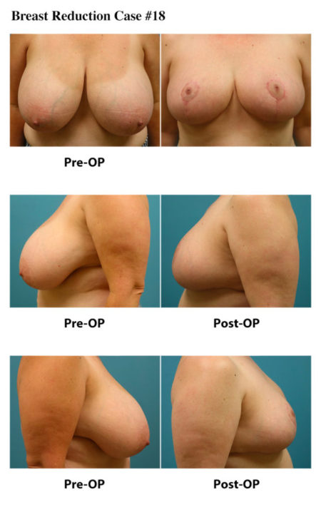 Breast Reduction Atlanta Plastic Surgery GA