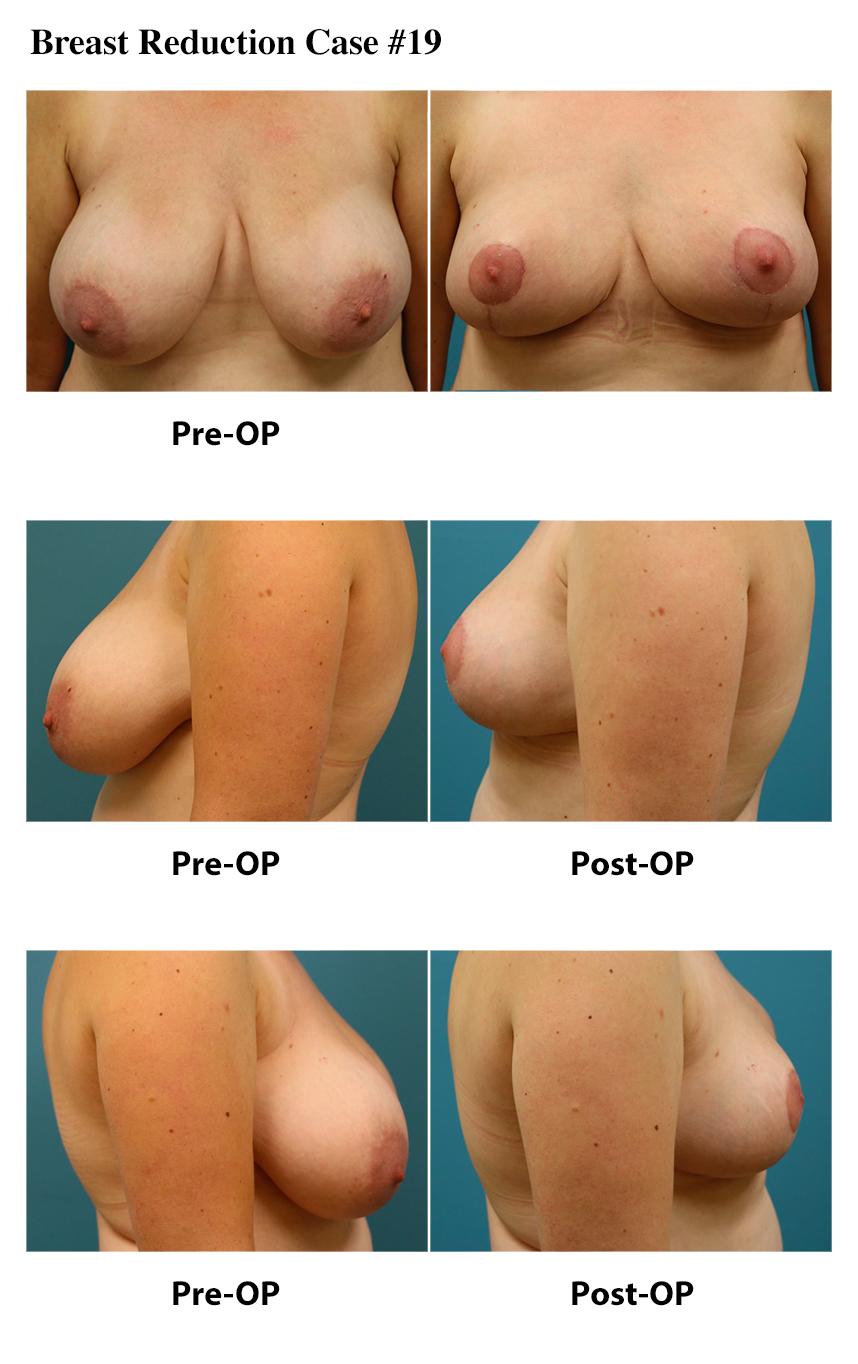 Breast Reduction Atlanta Plastic Surgery