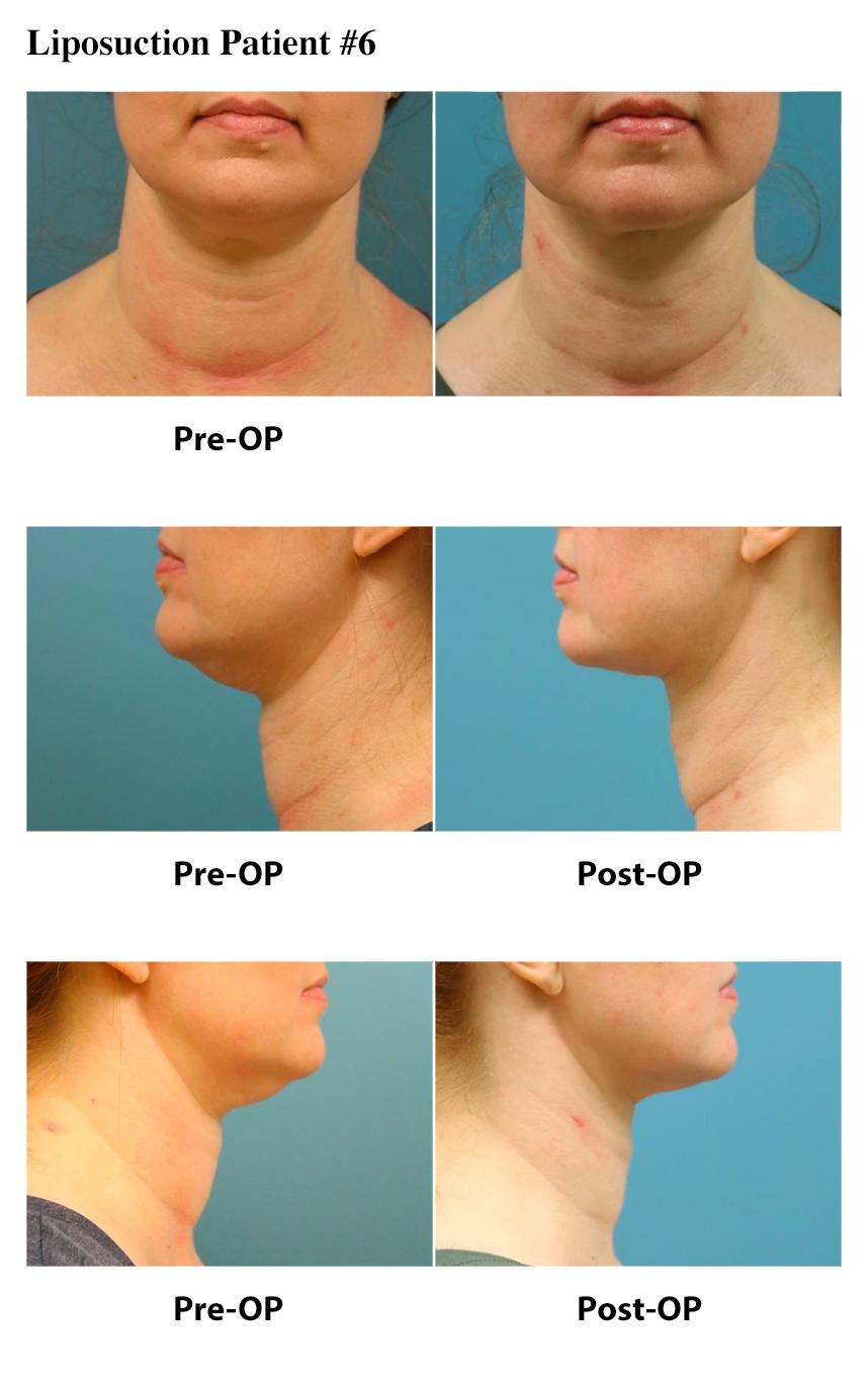 Liposuction Atlanta Plastic Surgery