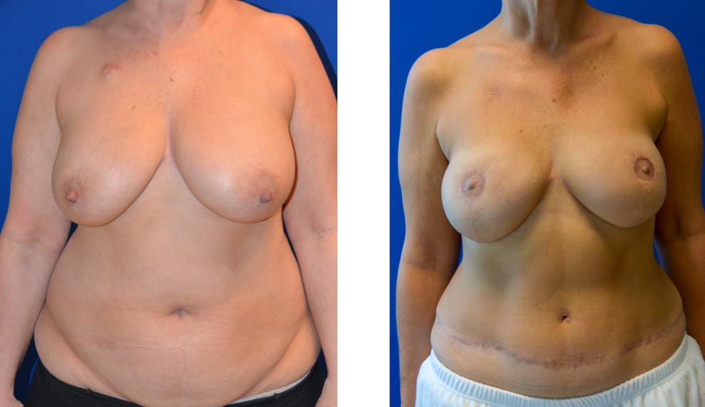 Bilateral mastectomy Bilateral DIEP with nerve grafting Followed by nipple reconstruction and fat grafting