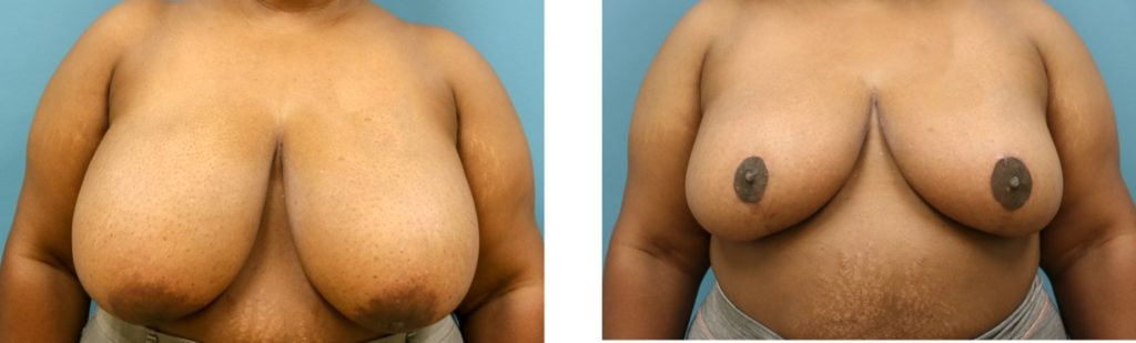 Breast reduction with mastopexy case 3