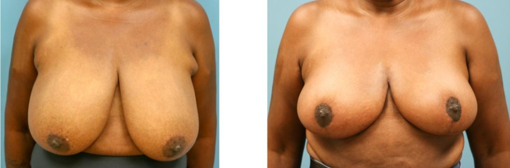 Breast reduction with mastopexy case 4