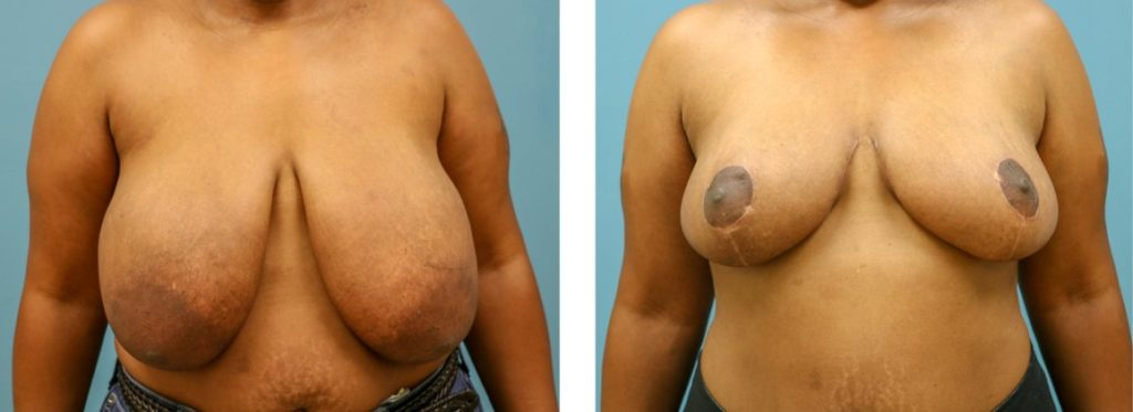 Breast reduction with mastopexy case 5