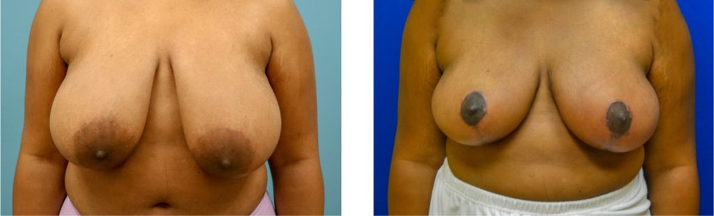 Breast reduction with mastopexy case 6