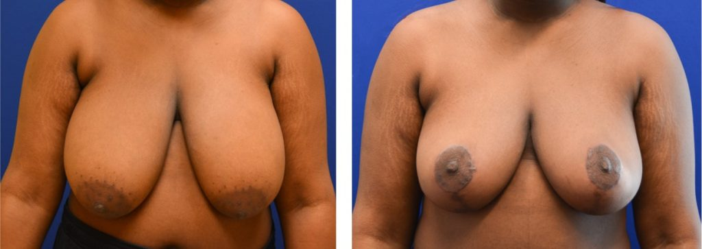 Breast reduction with mastopexy case 7