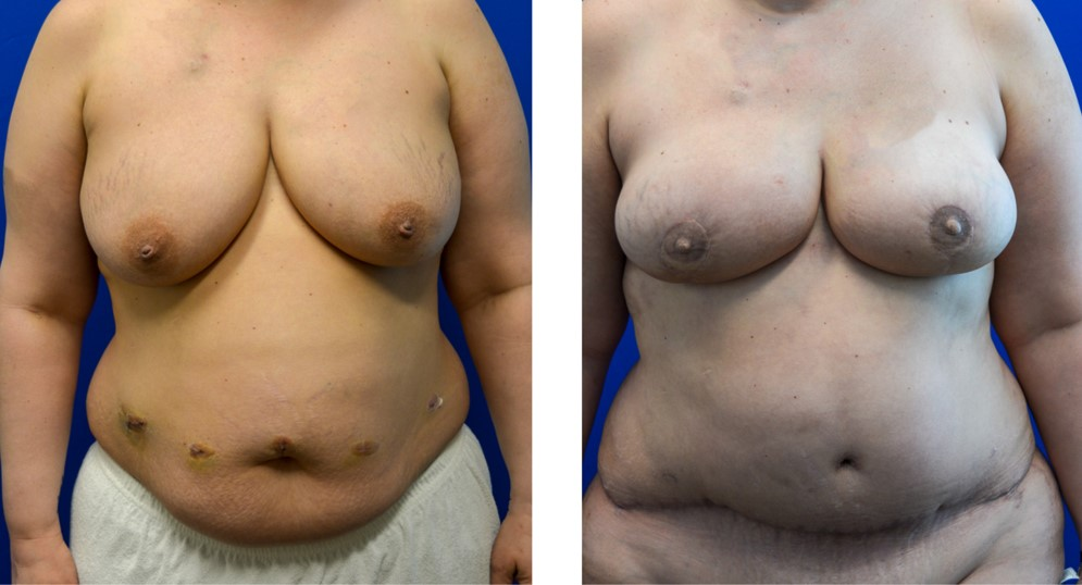 DIEP Free Flap Breast Reconstruction Case 10