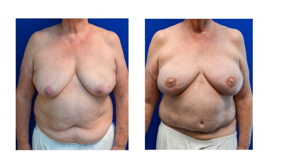 DIEP Free Flap Breast Reconstruction Case 13