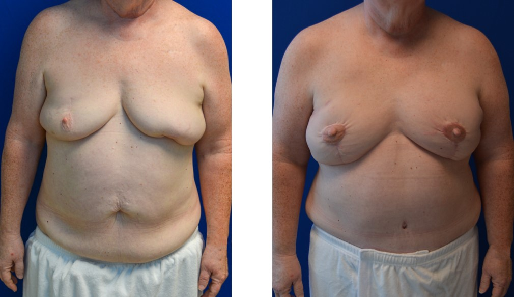 DIEP Free Flap Breast Reconstruction Case 8