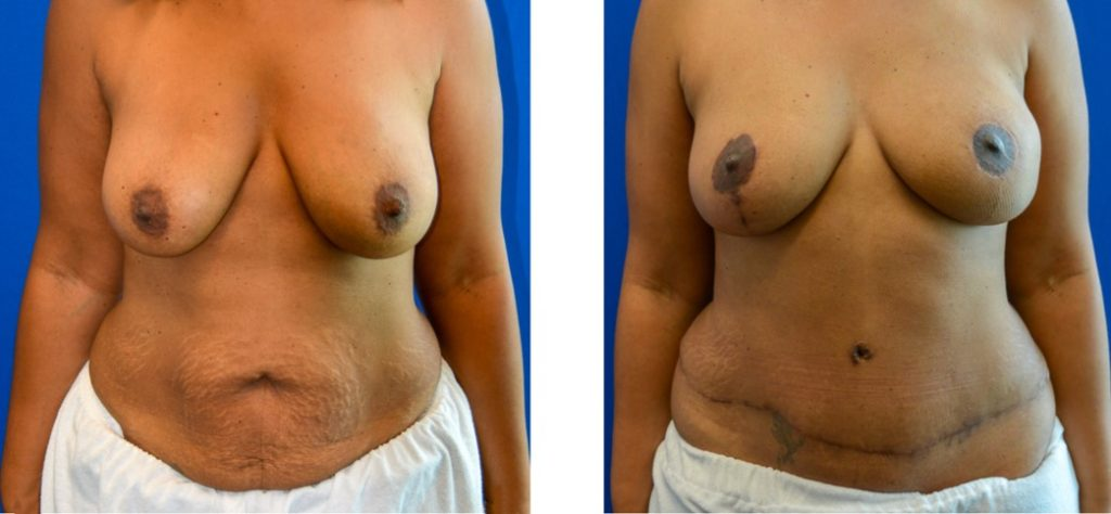 DIEP Free Flap with Nerve Grafting & Nipple Reconstruction Before & After