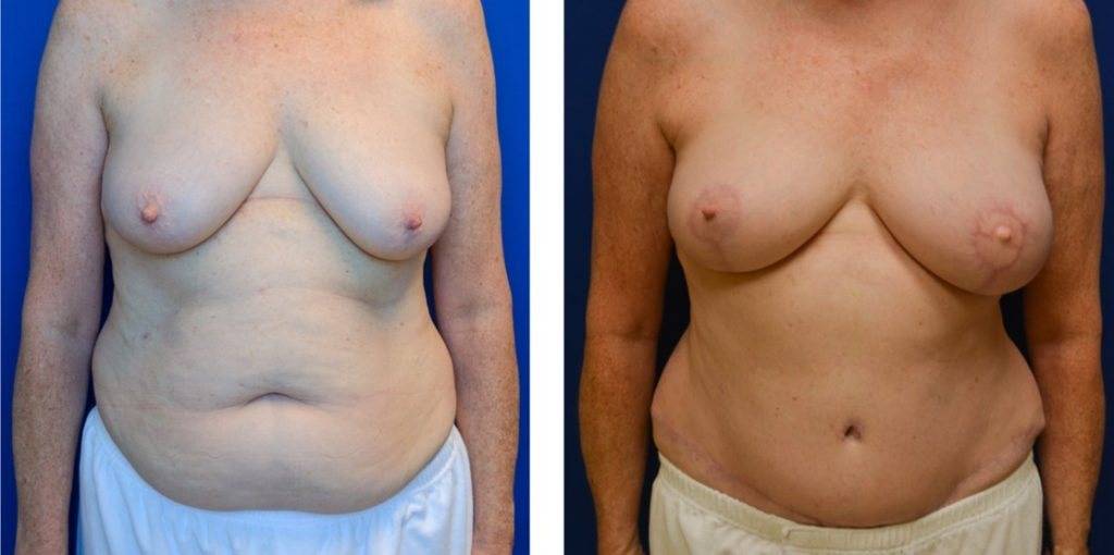 DIEP Free Flap with Nerve Grafting & Nipple Reconstruction right breast lift Before & After