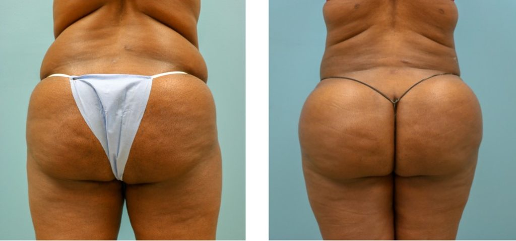 Gluteal augmentation with fat grafting (Brazilian Butt Lift)