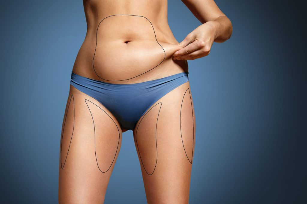 How to Prepare Your Body for Liposuction